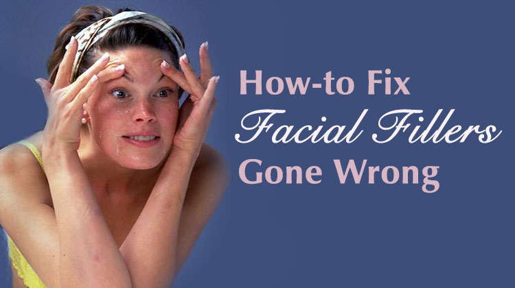 How-to Fix Facial Fillers Gone Wrong